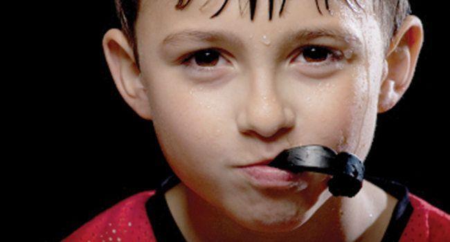 mouthguard