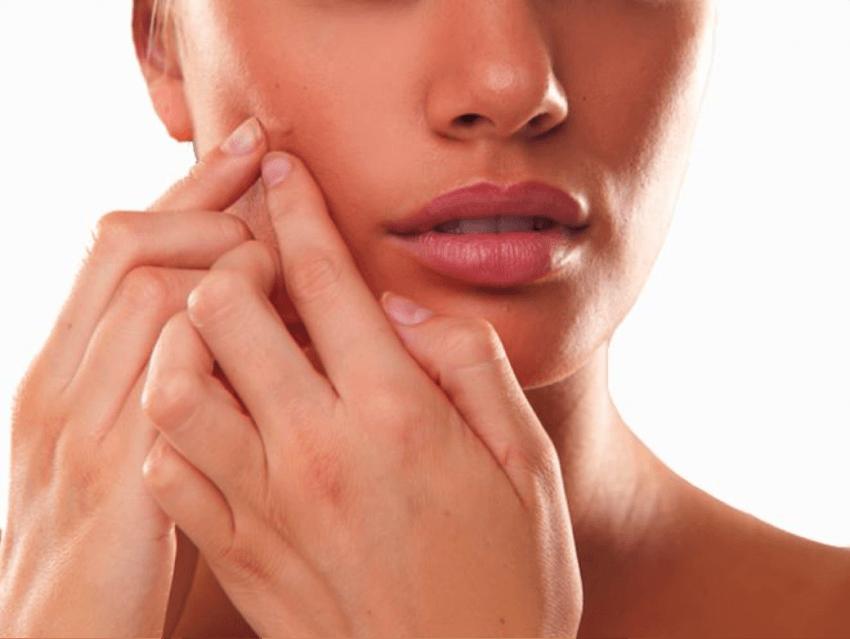 berhenti sentuh kulit wajah dengan tangan kotor