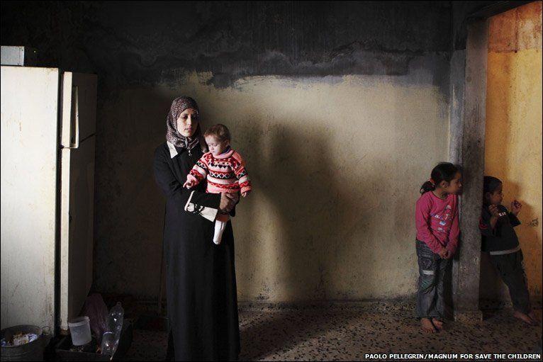 Gizi buruk yang parah dialami oleh anak=anak Palestina