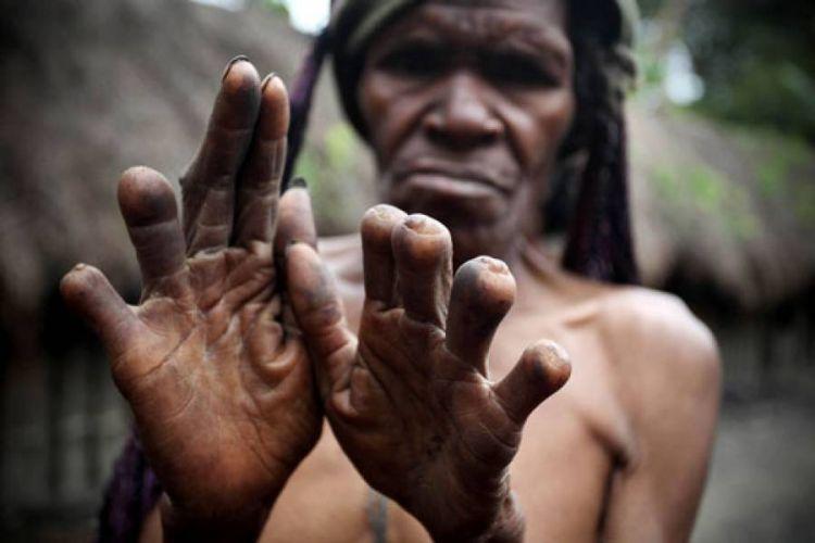 Seorang sesepuh memperlihatkan jarinya yang tidak utuh
