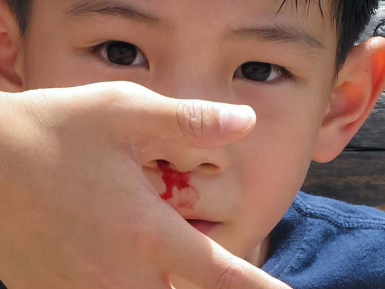 Hentikan pendarahan di hidung