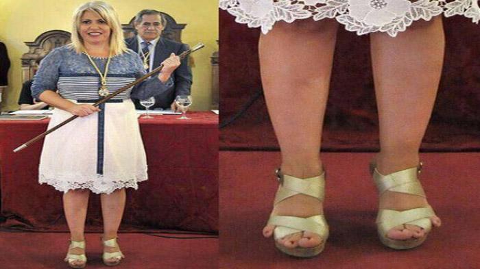 sepatu yang sempit akan membuat lecet pada kakimu