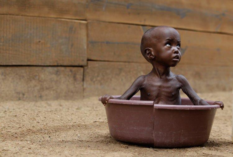 Malnutrition. :(