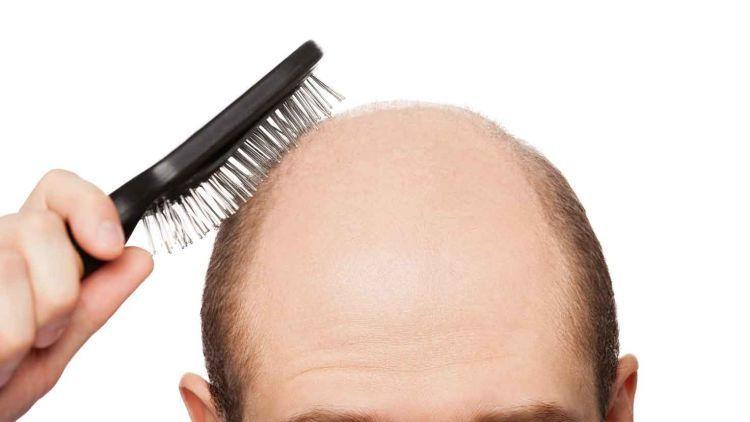 santan dan kemiri bisa bantu percepat pertumbuhan rambutmu
