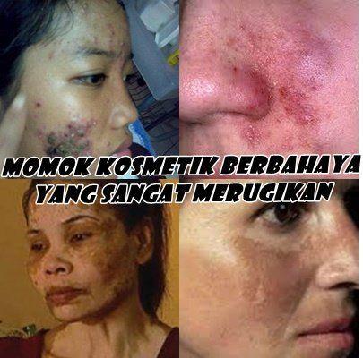 akibat kosmetik abal-abal 1