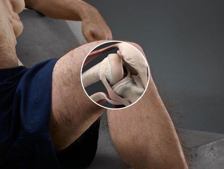 lututnya bisa nekuk ke segala arah nih. pro kontra mah biasa