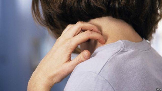 5 Penyakit Kulit Terlangka di Dunia Ini Bikin Kamu Ngeri Sendiri