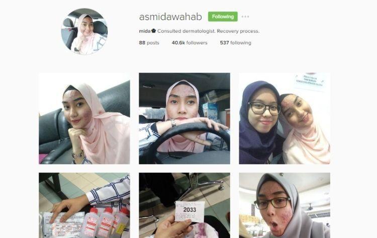 Akun instagram Asmida