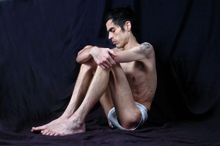 Pria yang mengidap anorexia mulai meningkat
