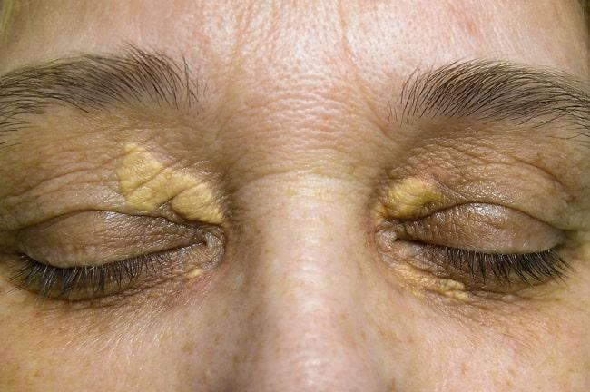 tanda kolesterol tinggi di muka