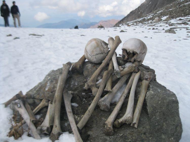 Tulang-belulang manusia~