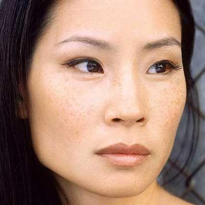 bintik-bintik pada wajah Asia