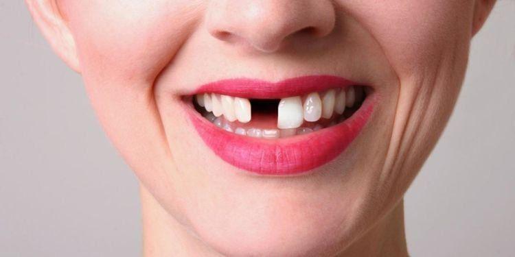 gigi lepas