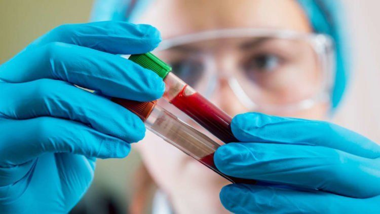 Ambrosia dan ALkahest sedang melalukan percobaan pada manusia