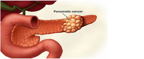 5 Jenis Kanker yang Tanda Awalnya Susah Dideteksi. Kamu ...