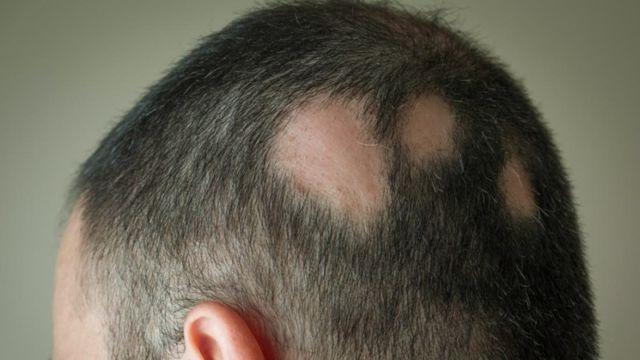 Hormon Alopesia Areata menyebabkan pitak