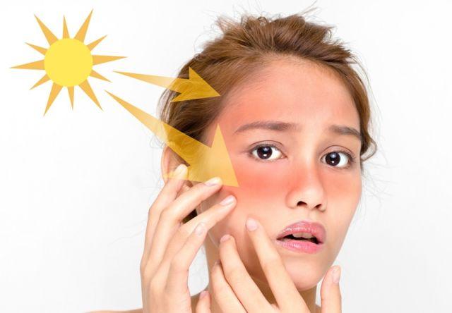 Paparan sinar matahari bisa ngerusak kulitmu loh