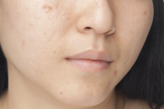 Wajah bebas bekas jerawat dan flek hitam