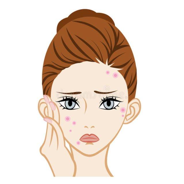 acne illustration