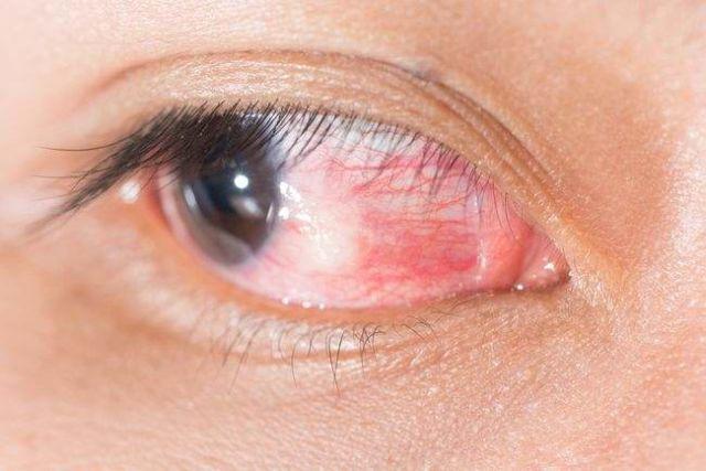titik merah dalam mata