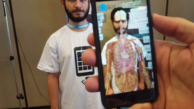 Augmented Reality Pada dunia medis