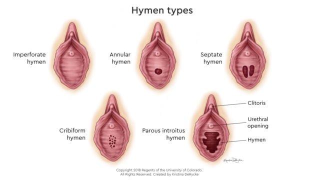 tes perawan Gambar vagina yang sudah tidak perawan