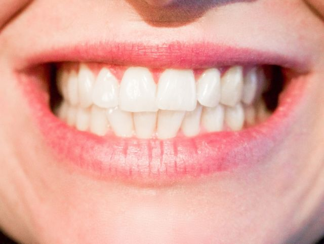Gigi Putih