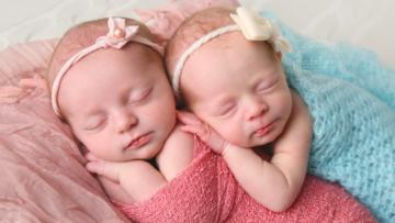 Kumpulan Artikel Bayi Kembar Lucu
