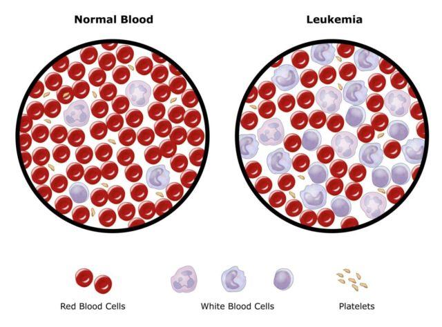 6 Info Tentang Kanker Darah yang Simpang Siur. Kanker ...