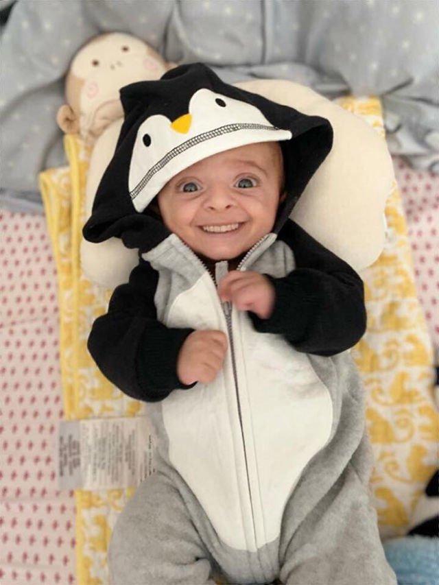 Kalau Bayi Udah Punya Gigi Sejak Lahir Beginilah 11 Penampakannya