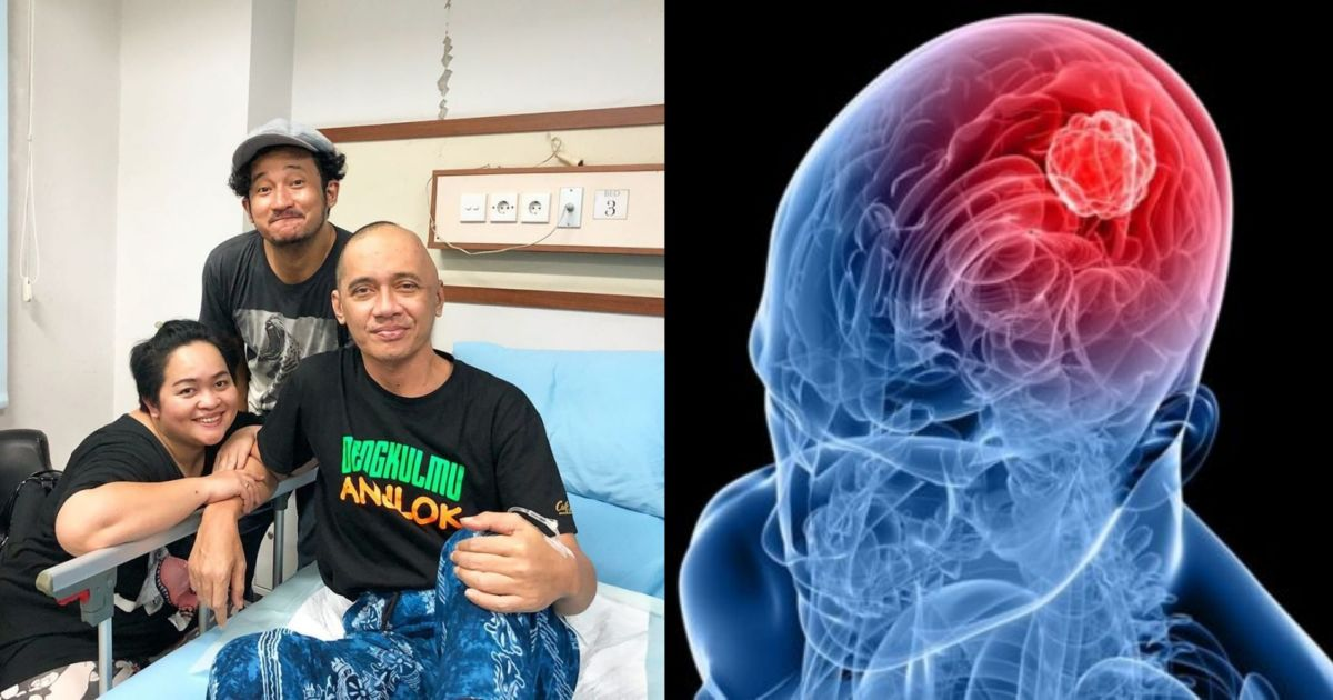 6 Gejala Umum Glioblastoma, Kanker Otak Tergolong Ganas ...