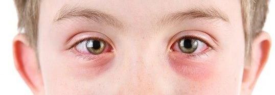 Konjungtivis mata merah by Bella Yuanita