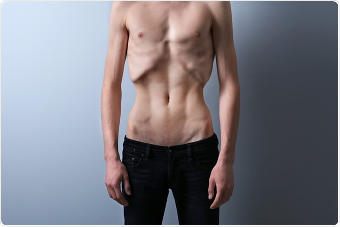 Male with anorexia