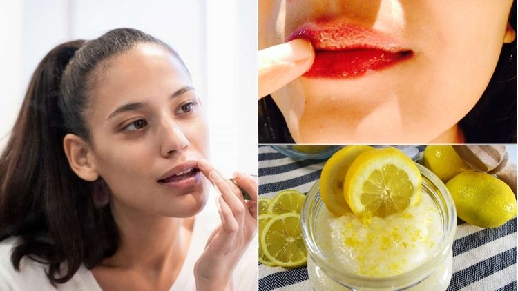 9 Cara Memerahkan Bibir Hitam Yang Kadung Permanen Biarpun Nggak Instan Yang Penting Telaten
